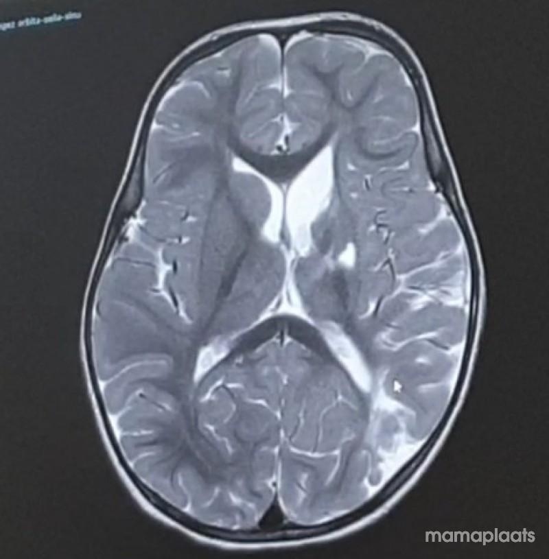 Afbeelding blog 'De uitslag van de MRI '